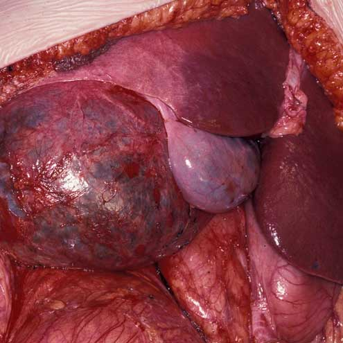 Why Has Liver Disease in England Risen by 40%?